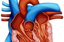 脳梗塞と5年後死亡率を減らす「左心耳閉鎖術」が日本導入へ
