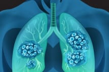 肺がんステージⅢの治療に新薬登場 「20年ぶりに進展」へ