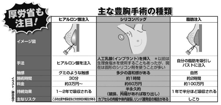 主な豊胸手術の種類