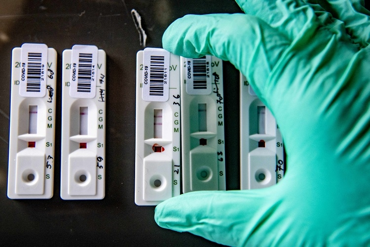 新型コロナウイルスの抗体検査キットの需要が急増(ABACA PRESS/時事通信フォト)
