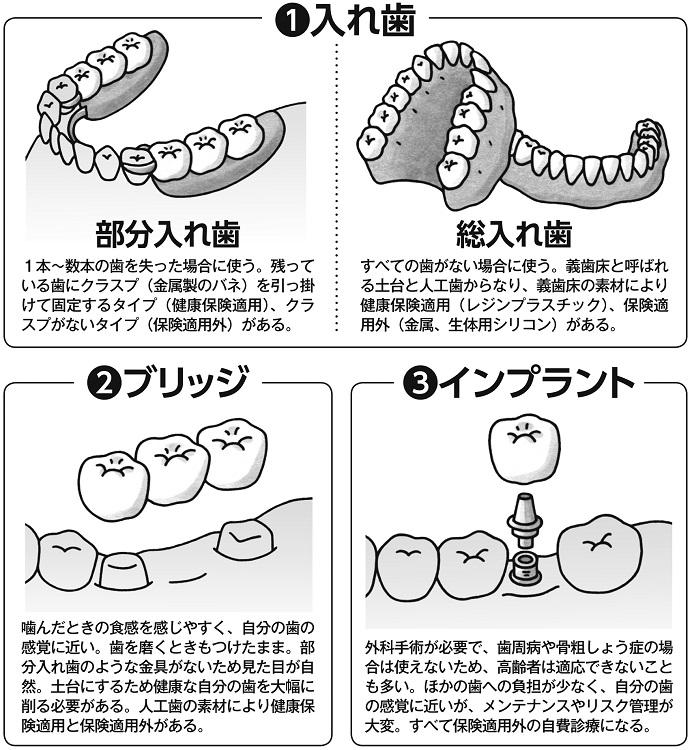 歯を失ったときの選択肢