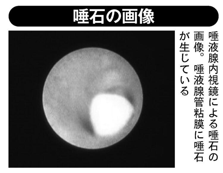 唾液腺内視鏡による唾石の画像。唾液腺管粘膜に唾石が生じている