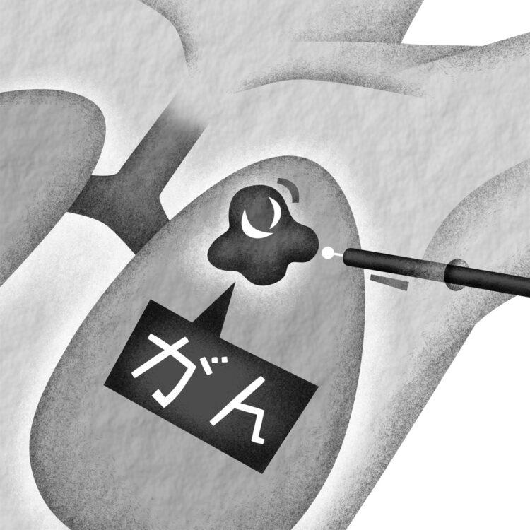 肺がん手術はどう進化した?(イラスト/いかわ やすとし)