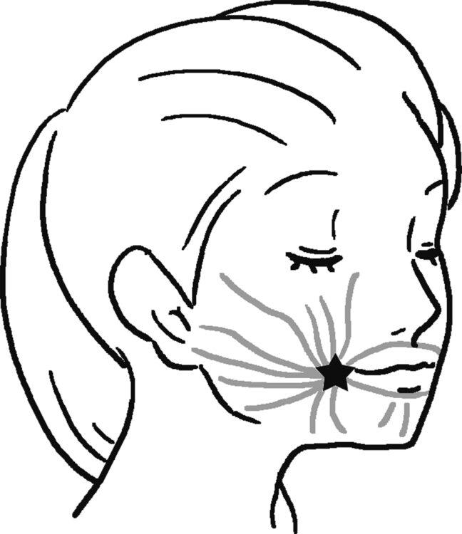 【図1】左手の親指を口の中に入れ、右頬のモダイオラス(星印)を親指と人差し指で挟む。上下に揺らすようにして、30秒間振動を与える。反対側も同様に行う