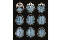 アルツハイマー病のメカニズム アミロイドβが神経細胞を死滅させる