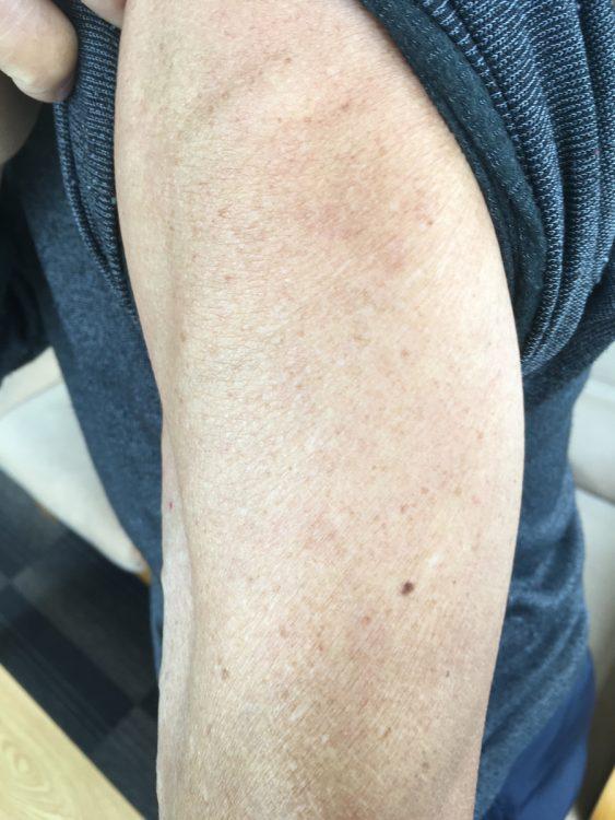 日本国内ですでに「4回目」のワクチンを打った人物が