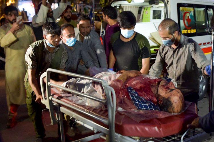 自爆テロ直後、カブールの病院には次々と被害者が運び込まれた(EPA=時事)