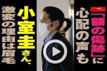 【動画】「額の傷跡」に心配の声も 小室圭さん、激変の理由は眉毛